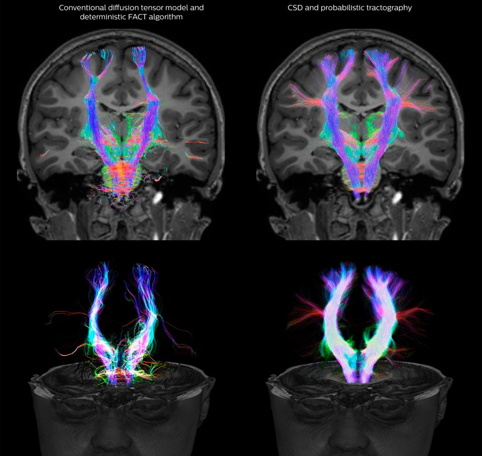 UVM research comparison of fiber tractography methods