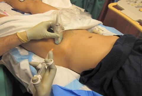 Ultrasound Guided Femoral Nerve Block for a Large Thigh Laceration